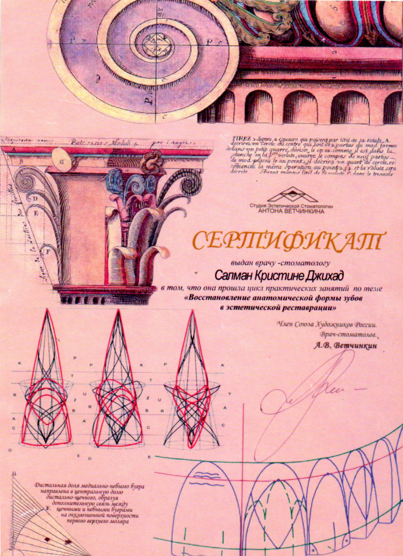 """Сертификат """"Восстановление анатомической формы зубов в эстетической реставрации"""""""